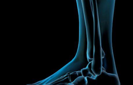 הבלוג של פרופ' הוכברג – בדיקת גיל עצמות